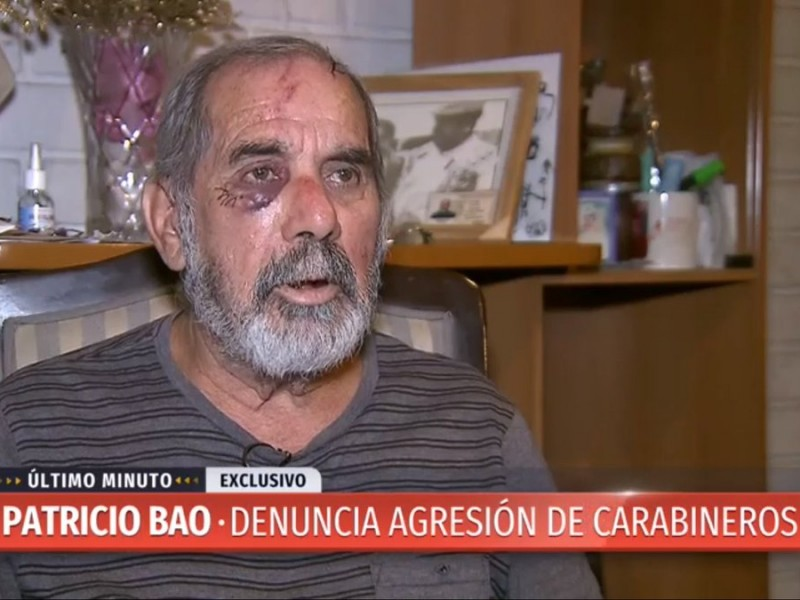 "Adulto mayor que aparece en video siendo agredido por Carabineros: ""No tienen criterio formal"""